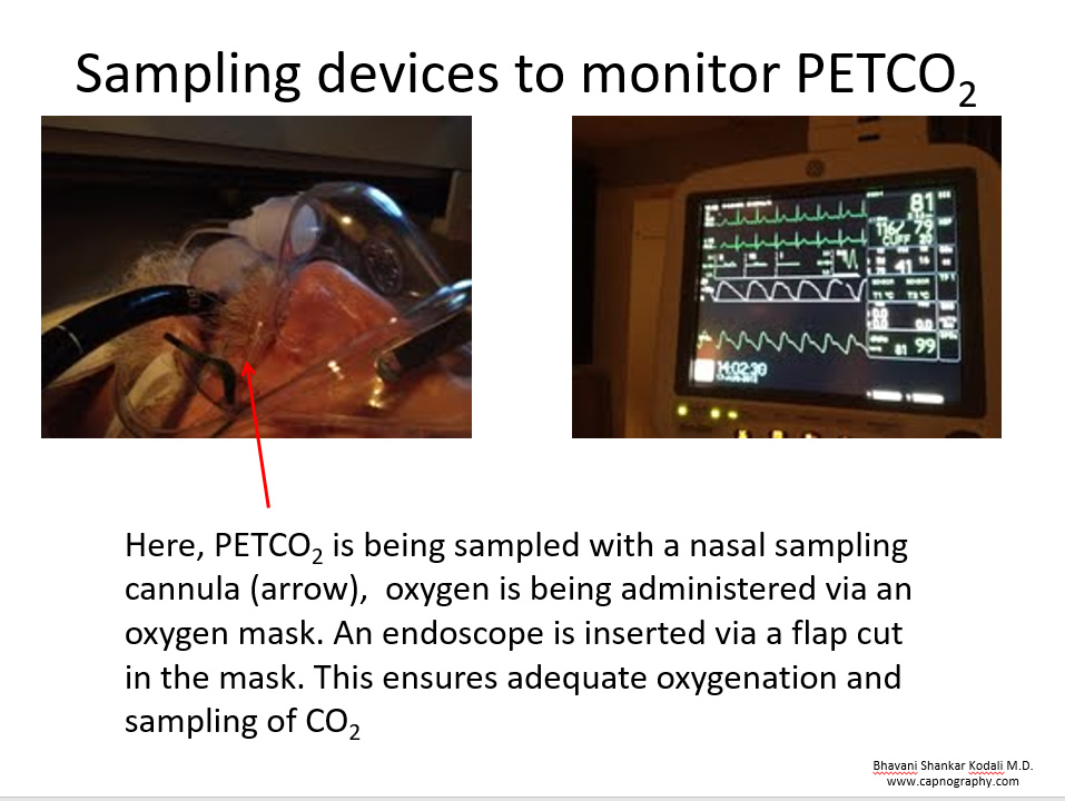 nasal sampling of expired gases with simultaneous oxygen administration